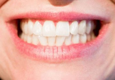 3 Top Home Teeth Whitening Kits In 2017